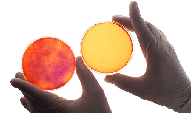 The petri dishes below show sterilization effects of negative air ionization on Salmonella. Source: Wikicommons